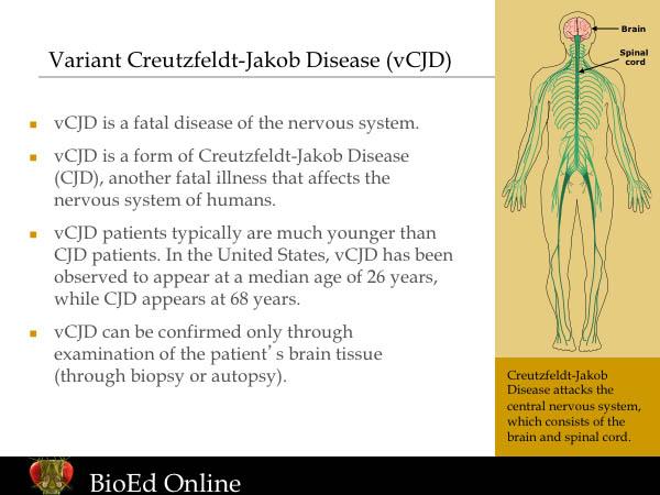 creutzfeldtjakob disease essay